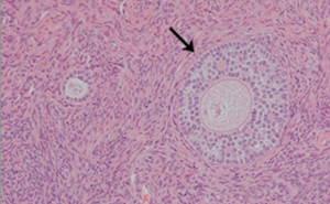 Two ovarian follicles at different stages of maturation (primary on the left, secondary on the right).